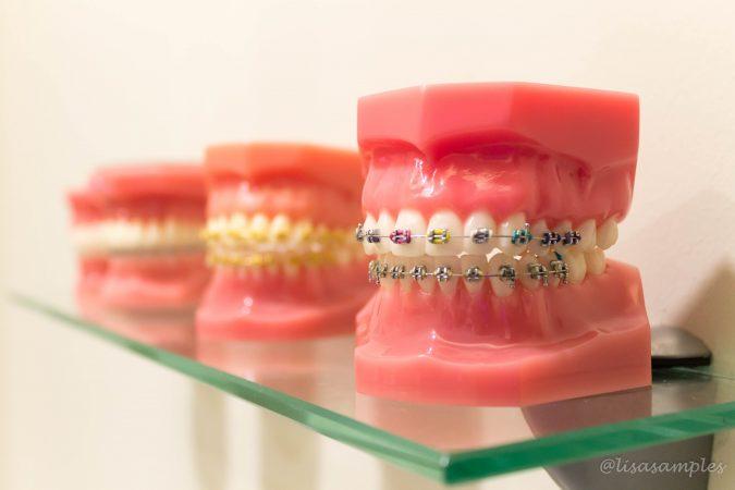 teeth (1 of 3)