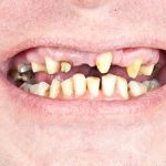 5 Dental Fixes to Repair a Chipped, Cracked or Broken Tooth